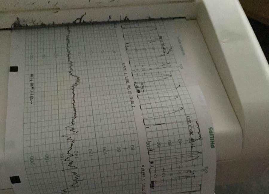 Contracciones en la inducción del parto (monitores)